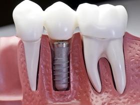 牙齿 牙龈 结构图 模型 高清图片